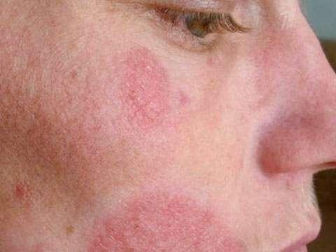 Дерматомикоз на лице